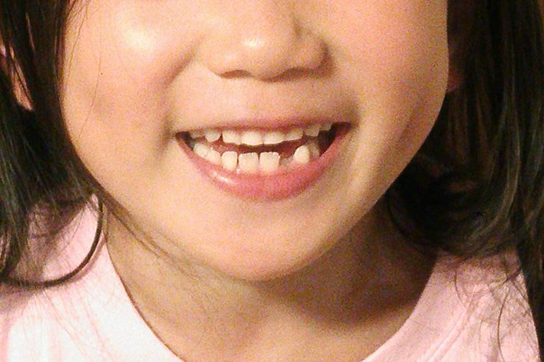 成長過程にある顎の骨を正しい方向に導きます